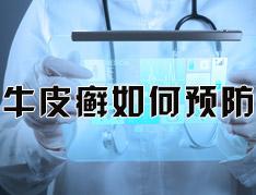 银屑病的日常预防要做什么